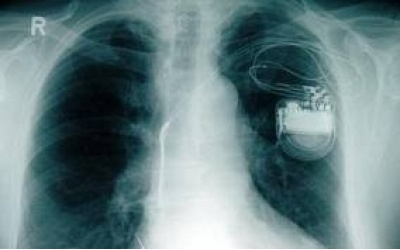 Implantation of a pacemaker in Germany