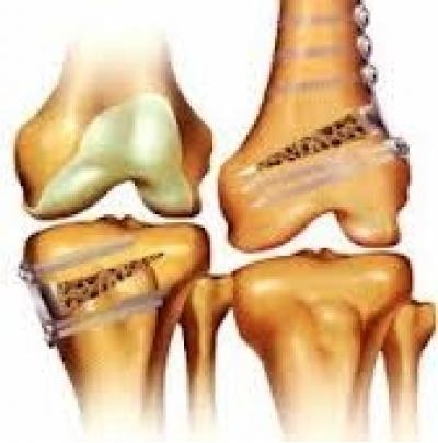 Osteotomy