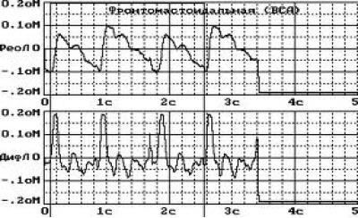 Rheoencephalography
