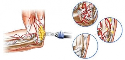 Shock wave therapy for the treatment of joints