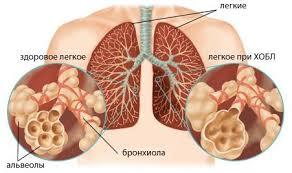 Хроническая обструктивная болезнь легких