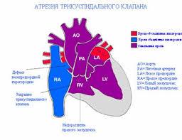 Tricuspid Valve Disease