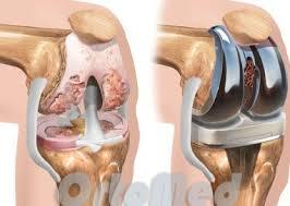 Эндопротезирование суставов в германии болезни суставов анализы