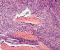 Фибросаркома. Mиксофибросаркома