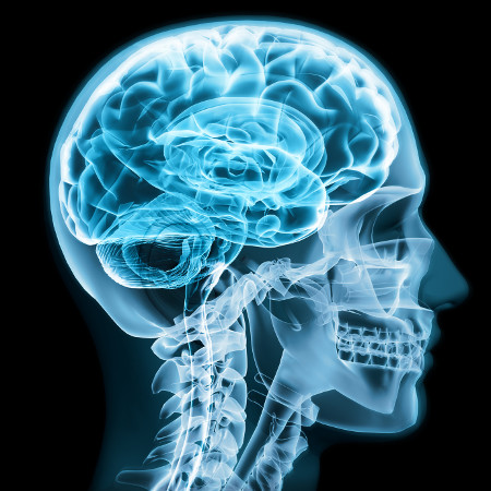 Лечение глиомы мозга в Германии