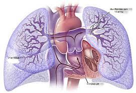 Лёгочная артериальная гипертензия