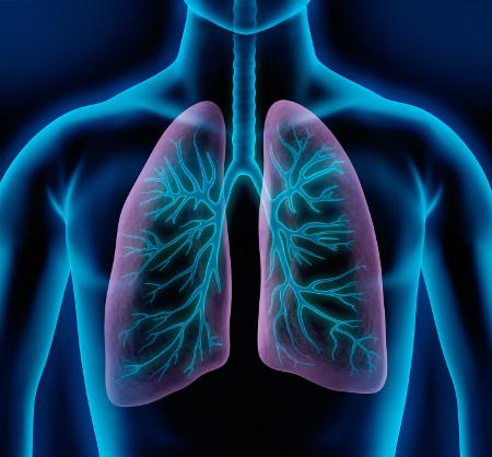 Трансплантация лёгких
