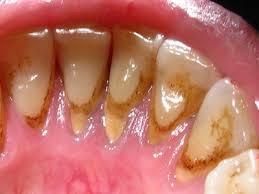 Зубной камень: признаки, методы профилактики и лечения
