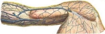 Тромбоз вен плеча