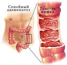 Ювенильный полипоз толстой кишки